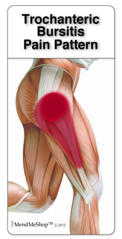 trochanteric bursitis pain pattern. MendMeShop TM  ©2012